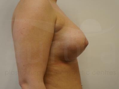 After-OCEAN Breast Enlargement