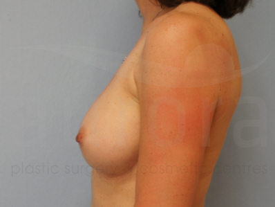 After-Removal and replacement of implants