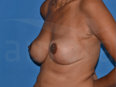 After-Breast Implant