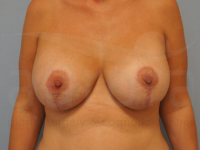 After-Breast Enlargment with Uplift
