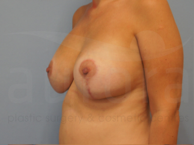 After-Breast Enlargement with Uplift