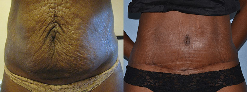 Barbara before and after her tummy tuck surgery