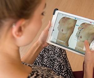 Aurora Clinics: Crisalix 3D Simulation