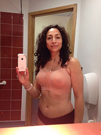 Photo of Post-surgery bra