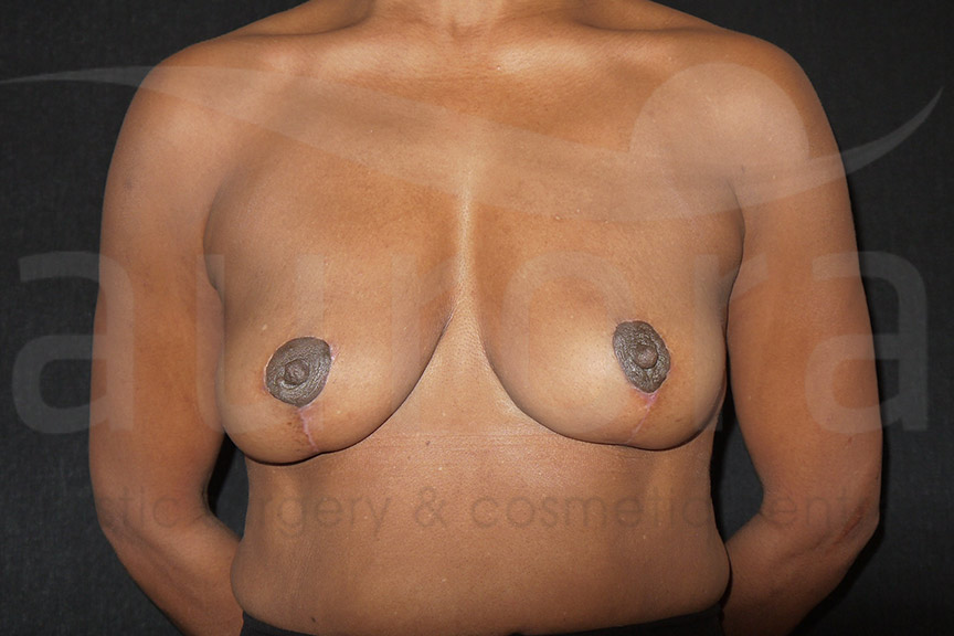 After-Implant Removal with Uplift