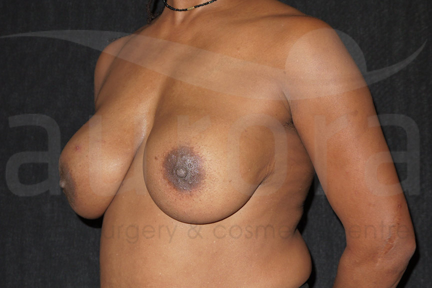 Before-Implant Removal with Uplift