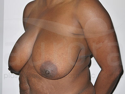 Before-BreastReduction23402