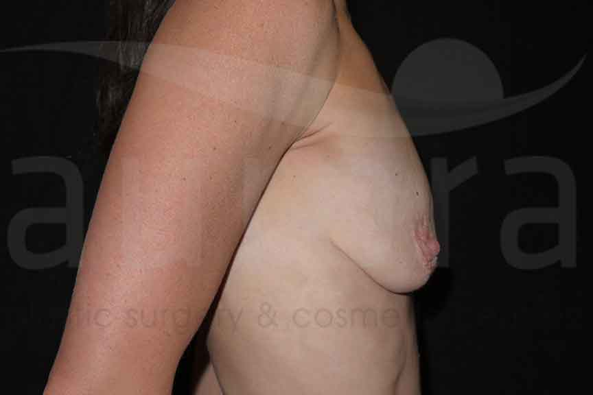 Before-Breast Enlargement & Uplift