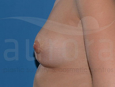 After-Areola Reduction