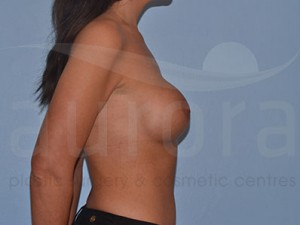 After Photo: Breast Enlargement 21841