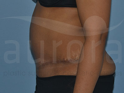 After-Abdominoplasty Surgery