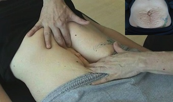 Aurora Clinics; Image showing an example of separated rectiys-abdominis muscles