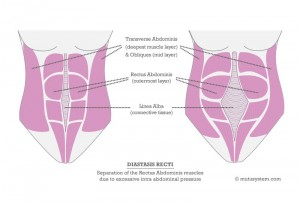 Aurora Clinics; Image showing the separation of Rectus Abdominis Muscles